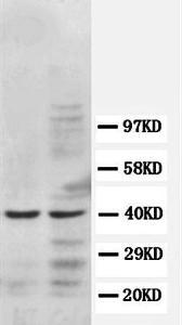 Western blot analysis of jurkat cell lysate(lane 1), and colo320 call lysate (Lane 2) using CCR5 antibody