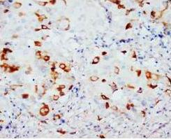 Immunohistochemical analysis of paraffin-embedded mammary cancer sections using CD40L antibody