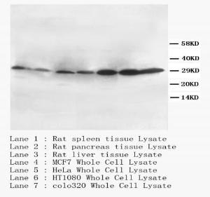 Western Blot analysis of tissue and cell lysate using CD40L antibody