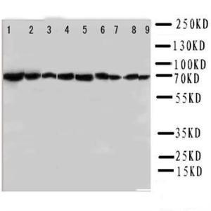 Western blot analysis of Lane 1: Rat Testis Tissue Lysate, Lane 2: Rat Brain Tissue Lysate, Lane 3: Rat Liver Tissue Lysate, Lane 4: Rat Lung Tissue Lysate, Lane 5: CEM Cell Lysate, Lane 6: HELA Cell Lysate, Lane 7: SMMC Cell Lysate, Lane 8: HT1080 Cell L