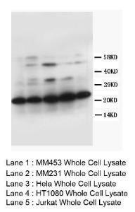 Western Blot analysis of cell tissue lysate using CD133 antibody