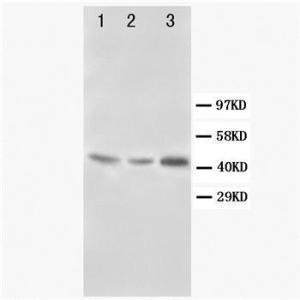 Western blot analysis of Lane 1: Rat Liver Tissue Lysate, Rat Kidney Tissue Lysate, Lane 3: SMMC Cell Lysate using Decorin antibody.