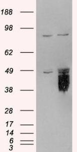 HEK293 overexpressing TFPI (RC219033) and probed with orb18320 (mock transfection in first lane), tested by Origene.