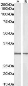 Western blot analysis of Rat (Lane1) and Pig (Lane2) Kidney lysate using NQO1 antibody