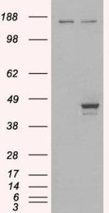 HEK293 overexpressing ELF3 (RC200631) and probed with orb18399 (mock transfection in first lane), tested by Origene.