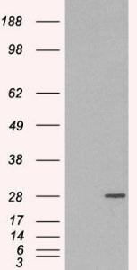 HEK293 overexpressing RAB11A(RC200352) and probed with orb18403 (mock transfection in first lane), tested by Origene.