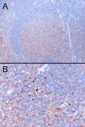 Immunohistochemical analysis of staining of Human Tonsil (Lane1) and Mouse Kidney (Lane2) lysate using GATA3 antibody
