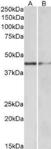 Western blot analysis of staining of Human Tonsil (Lane1) and Mouse Kidney (Lane2) lysate using GATA3 antibody