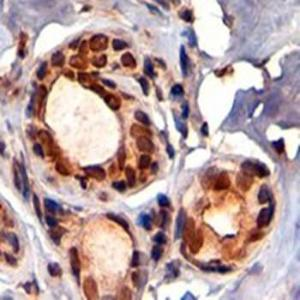 Immunohistochemical analysis of formalin-fixed and paraffin embedded Human Breast using KAP1 antibody