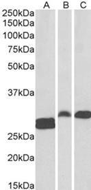 Western blot analysis of staining of Human Tonsil (A) and Rat (B) and Pig (C) Spleen lysate using SSP29 antibody.