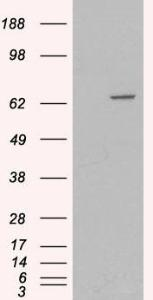 HEK293 overexpressing MTM1 (RC205306) and probed with orb18508 (mock transfection in first lane), tested by Origene.