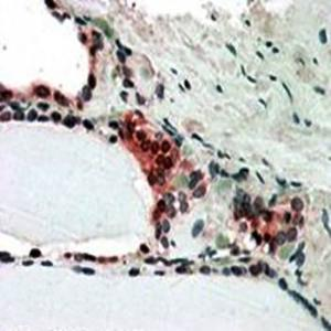 Immunohistochemical analysis of formalin-fixed and paraffin embedded Human Thyroid Gland shows nclear and cytoplasm (3-5ug/ml) using CSN2 antibody