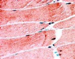 orb18450 (1.25ug/ml) staining of paraffin embedded Human Skeletal Muscle. Steamed antigen retrieval with citrate buffer pH 6, AP-staining.