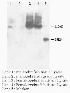 Western Blot analysis of tissue lysate using PNPLA6 antibody