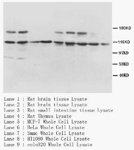 Western Blot analysis of tissue and cell lysate using Trk-A antibody