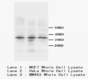 Western blot analysis of whole cell lysate using Calponin antibody