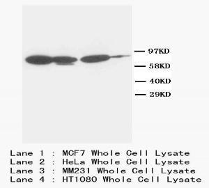 Western Blot of whole cell lysate using Catenin gamma (Plakoglobin) antibody