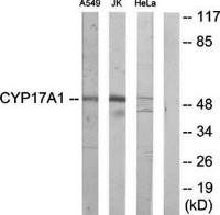 Western blot analysis of extracts from A549 cells, Jurkat cells and HeLa cells using Ik3-2 antibody