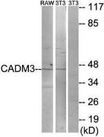 Western blot analysis of extracts from RAW264.7 cells and NIH-3T3 cells using CDCA4 antibody