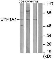 Western blot analysis of extracts from COS-7 cells, RAW264.7 cells and HT-29 cells using CDH11 antibody
