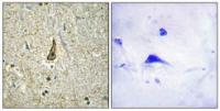 Immunohistochemical analysis of formalin-fixed and paraffin-embedded human brain tissue using CDH18 antibody
