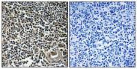 Immunohistochemical analysis of formalin-fixed and paraffin-embedded human thymus gland tissue using CBLN4 antibody