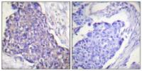 Immunohistochemical analysis of formalin-fixed and paraffin-embedded human breast carcinoma tissue using CD40 antibody
