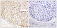 Immunohistochemical analysis of formalin-fixed and paraffin-embedded human breast carcinoma tissue using p18 INK antibody